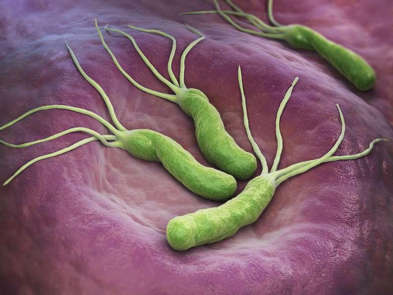 Gastrite Helicobacter
