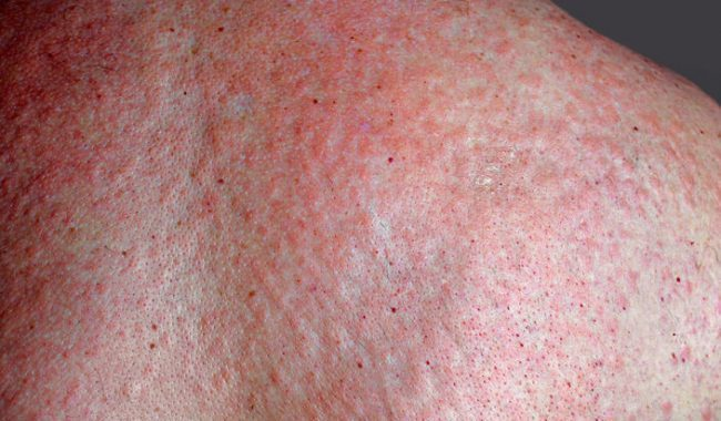 allergia ai crostacei