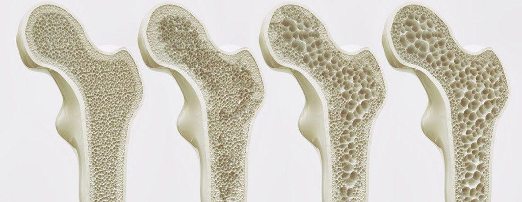 Osteoporosi, ossa