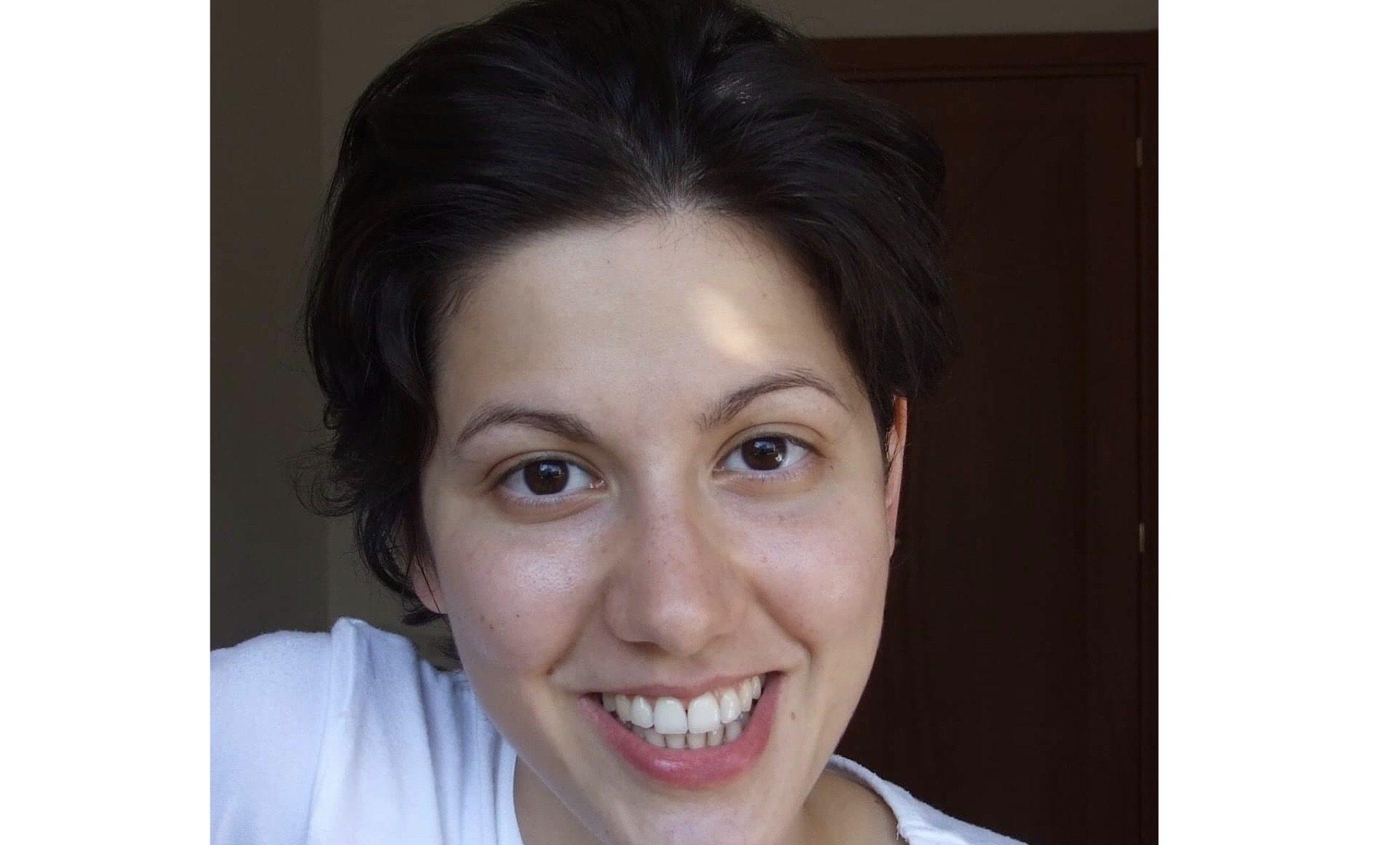 Filomena Focacci - Testimonianza SAUTÓN Approach