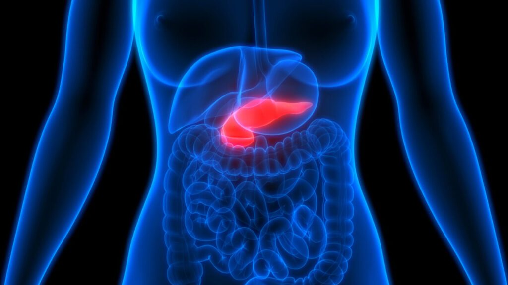 Dieta fruttariana, fruttosio e cancro al pancreas